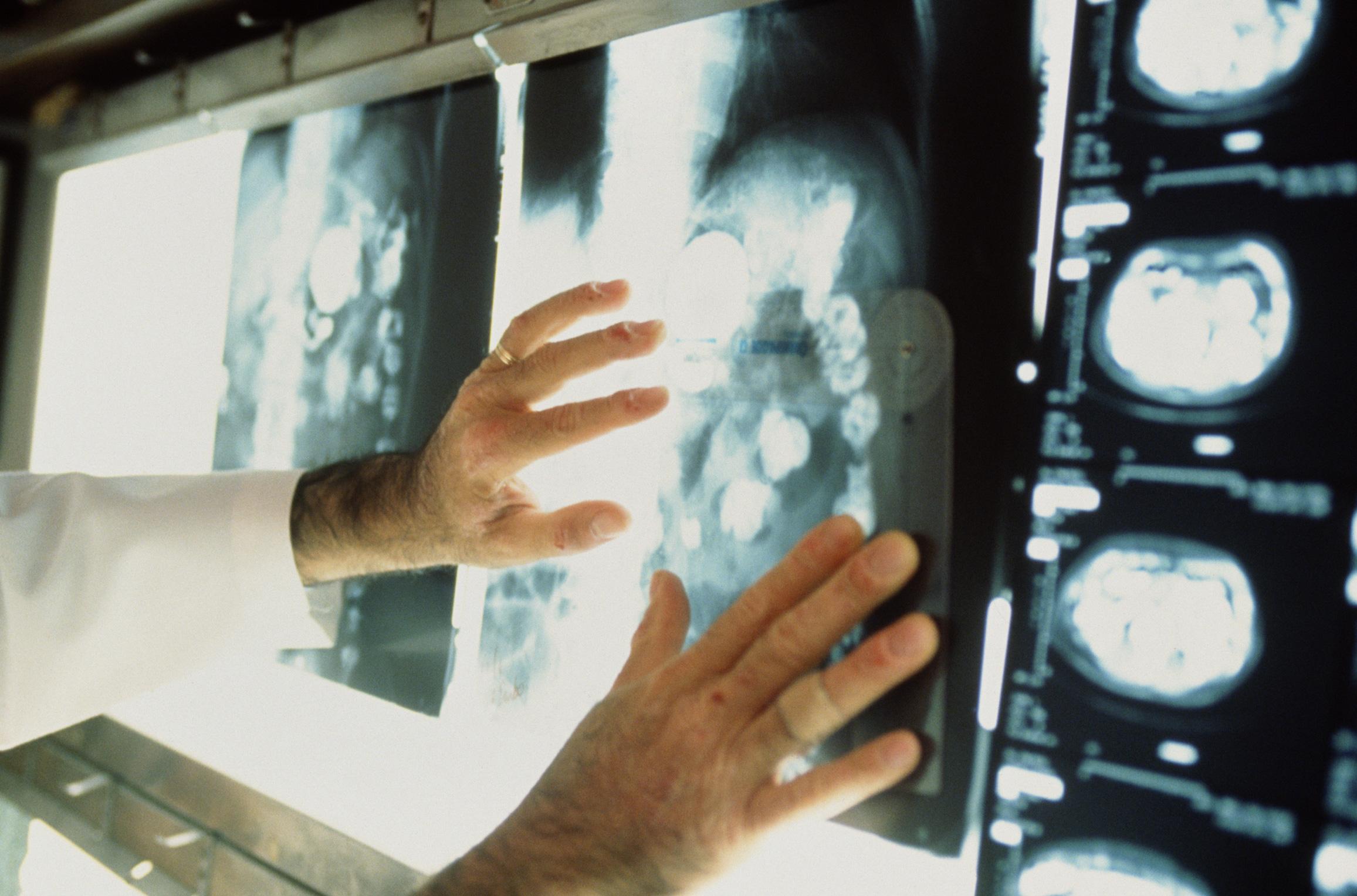 что такое онкология фото