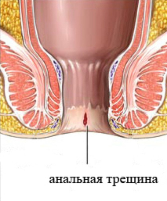 Зуд в заднем проходе глисты лечение в домашних условиях